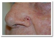 Basal-Cell-Carcinoma-1