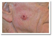 Basal-Cell-Carcinoma-2
